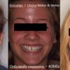 Paladar estrecho y recesiones gingivales en maxilar (edad 16 años)