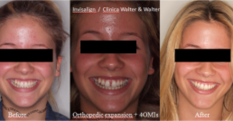 (Español) Paladar estrecho y recesiones gingivales en maxilar (edad 16 años)